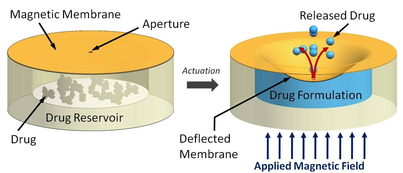 Biodispositivo para combatir la retinopatía diabética